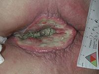 Tumeur envahissante du rectum non opérée douloureuse et malodorante