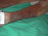 Dermite ocre : Coloration ocre et brune suite à l'extravasation des globules rouges hors des vaisseaux.