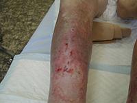 Atrophie blanche : Présence d'une zone blanchâtre d'aspect cicatriciel avasculaire autour de la plaie.