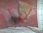 Ulcère nécrotique artériel du talon au niveau Tendon d'Achille