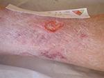 Ulcère mixte de la jambe