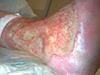Ulcère avec réaction inflammatoire périulcéreuse, une surinfection est redoutée.