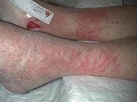 Eczéma: Erythème périulcéreux, suintement, vésicules et démangeaisons - Peau fragile à distance en raison des troubles vasculaires sous jacents
