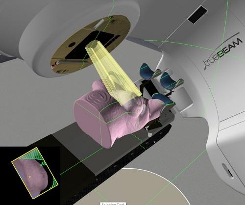 Projection en 3D d'un traitement d'un sein.