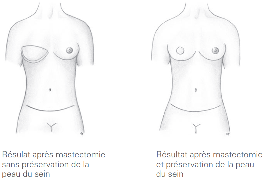Résultat après mastectomie