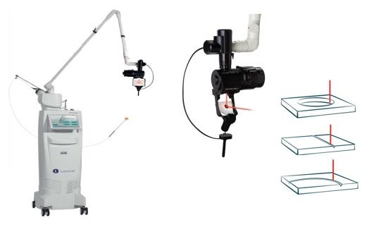 Laser CO2 pour les chirurgies gynécologiques et ORL