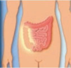 dérivation urinaire continente cutanée