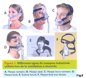 style de mode sélectionner pour le dédouanement classcic Ventilation non invasive (VNI) chez l'adulte | HUG ...